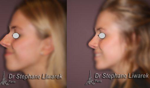 rhinoplastie-bosse du nez