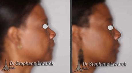 rhinoplastie-d-augmentation